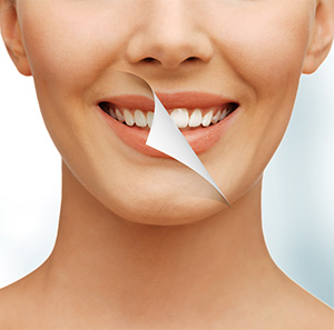 West Los Angeles cosmetic dentist |teeth whitening, white teeth| Le Chic Dentist